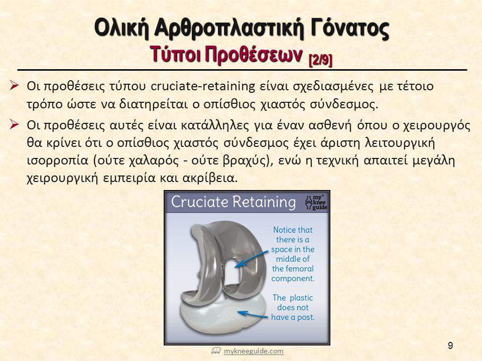 Ολική Αρθροπλαστική Γόνατος Τύποι Προθέσεων [3/9]